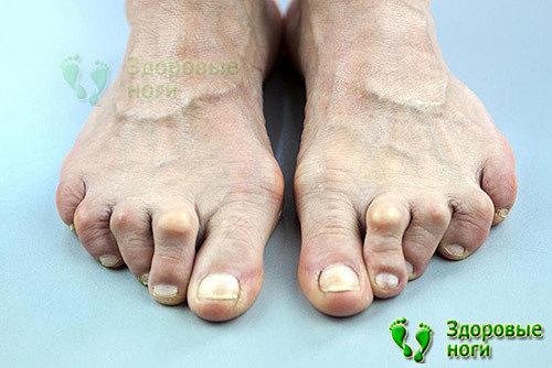 При молоткообразной деформации пальцев стопы симптомы видны сразу