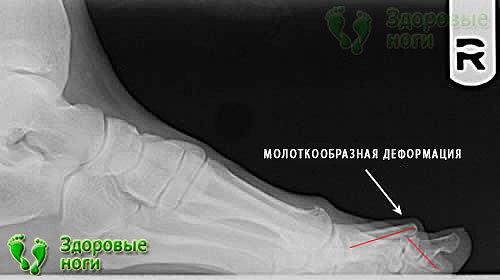 Диагностируется молоткообразная деформация второго пальца стопы с помощью рентгена