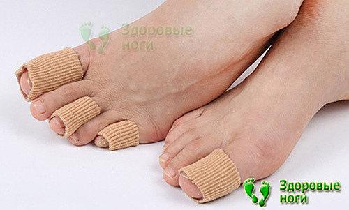 Не только корректоры при молоткообразных пальцах ног помогут в лечении, но и защитная гелевая трубка