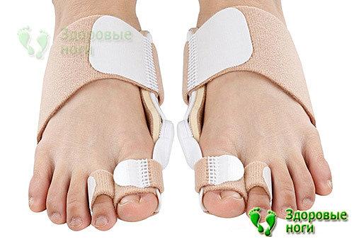 Исправление молоткообразных пальцев при наличии вальгусной патологии возможно со специальной шиной