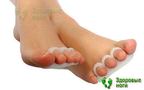 Корректор молоткообразных пальцев стопы поможет выправить искривленный сустав