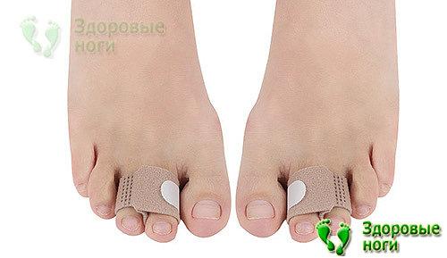 Бандаж при молоткообразных пальцах ног необходимо применять регулярно