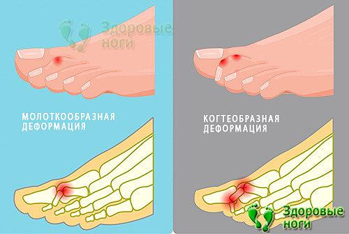 Когтеобразная деформация пальцев стопы характеризуется другой формой изгиба сустава