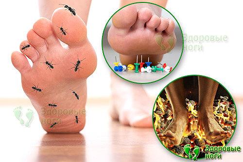 Если при сахарном диабете немеют стопы ног это очень тревожный сигнал