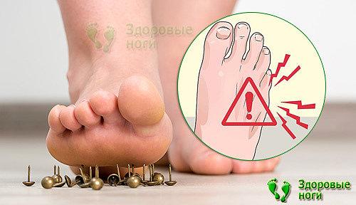 При сахарном диабете онемение пальцев ног может привести к серьезным последствиям