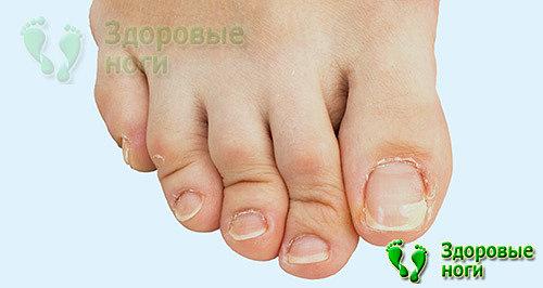 В этой статье пойдет речь о том, как исправить молоткообразный палец на ноге