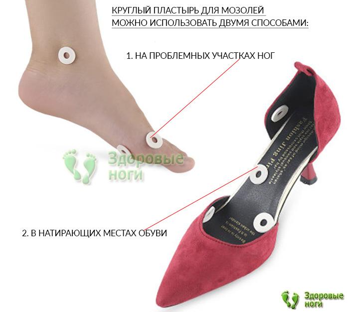 Самоклеящийся разгрузочный пластырь надежно фиксируется в обуви и на коже стоп